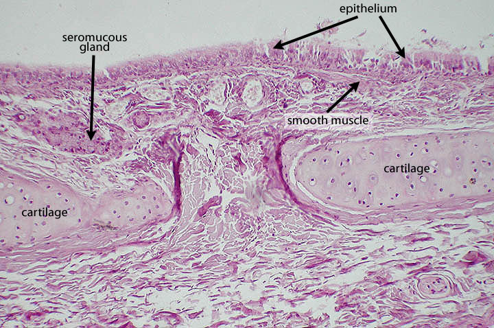 bronchi histology labeled google search res tract - 720×478