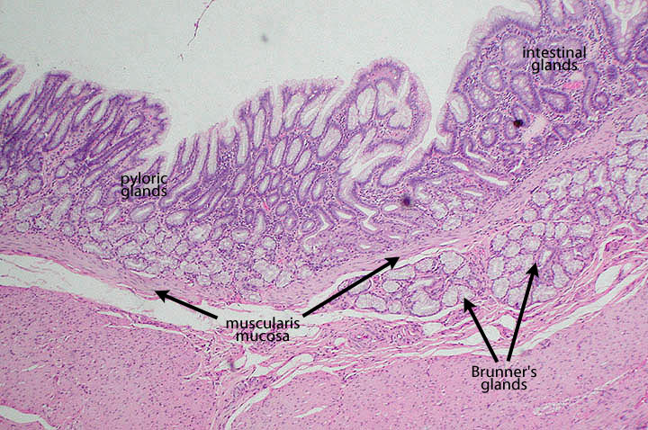 gastroduodenal junction