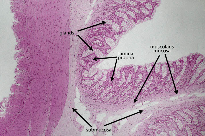 colonic mucosa lamina propria definition