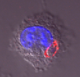 A single nonreplicating cps parasite inside a tumor cell