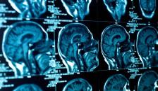 Image of brainscan-shutterstock_109083881