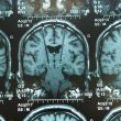 Image of brain-stim-shutterstock_167928044