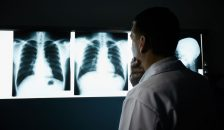 Image of lung-cancer-shutterstock_nc