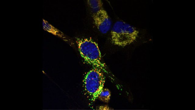 """Brain tumor cells after treatment with Y100, which causes depolarization of mitochondria and the appearance of mitochondrial """"hot spots"""" (red)."""