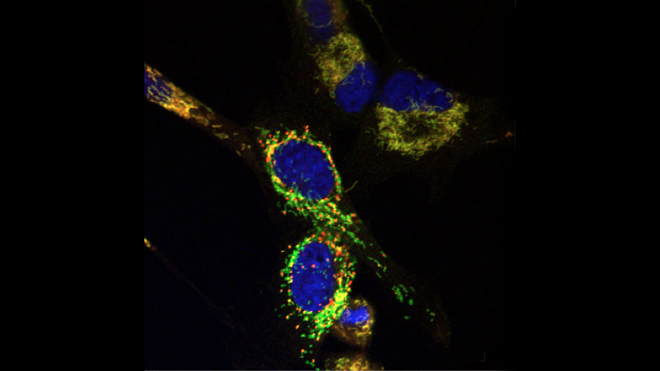 "Brain tumor cells after treatment with Y100, which causes depolarization of mitochondria and the appearance of mitochondrial ""hot spots"" (red)."