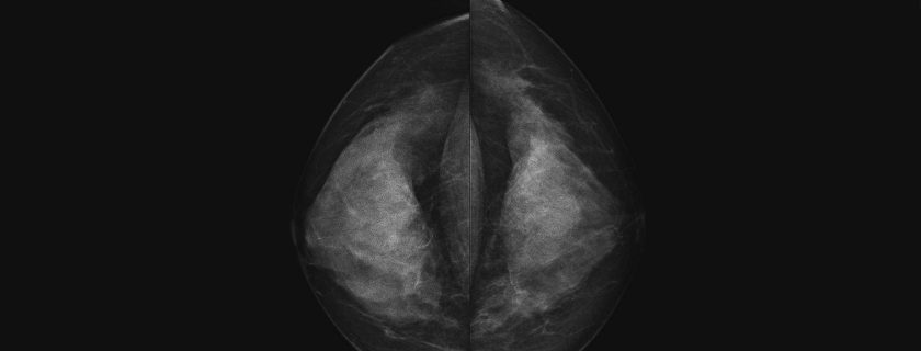 Potential New Surgical Options for Women with Multiple Ipsilateral Breast Cancer