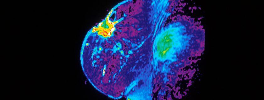 Photo: National Cancer Institute (https://www.cancer.gov).